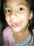 Her first lost tooth on the trip...(yes, there's more)